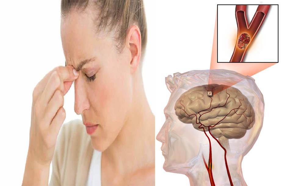 Sự nguy hiểm của phình mạch máu não