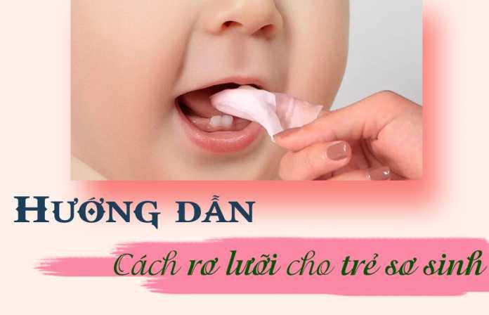 Rơ lưỡi cho trẻ sơ sinh