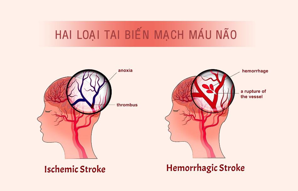 Phân loại tai biến mạch máu não