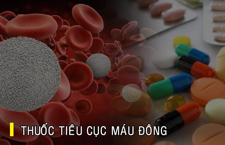 Thuốc tiêu cục máu đông thường được chỉ định trong các trường hợp tai biến mạch máu não