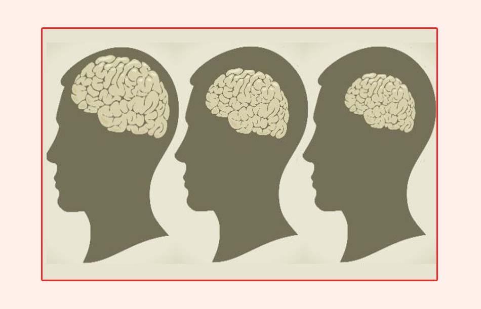 Stress làm giảm kích thước não, teo não, sụt giảm trí nhớ nghiêm trọng