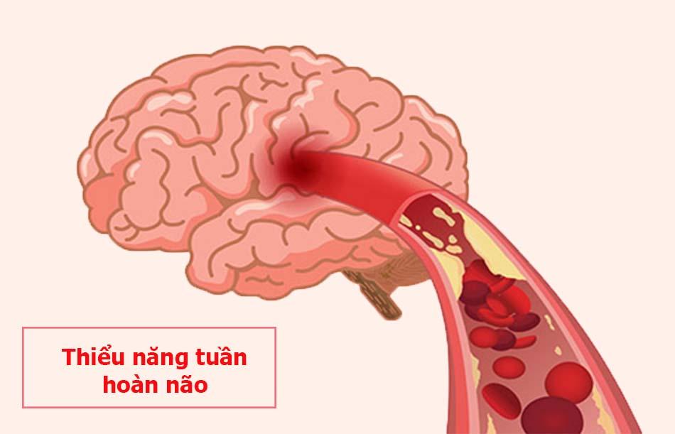 Thiểu năng tuần hoàn não là bệnh gì?