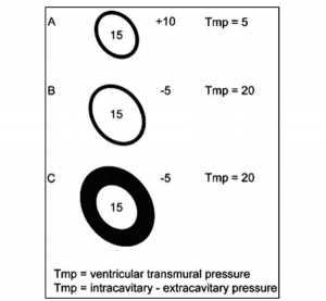 Hình 2. Mối tương quan của áp lực làm đầy tâm thất, áp lực cuối tâm trương (EDP), độ giãn nở tâm thất, và áp lực trong lồng ngực (ITP) để làm đầy thất. EDP là 15 cho mỗi tâm thất. A, ITP là +10 (thông khí áp lực dương). B, ITP là - 5 (thở tự phát). C, độ giãn nở tâm thất giảm. Tâm thất A so với B: Độ giãn nở tâm thất là như nhau; tuy nhiên, vì tâm thất B có áp lực xuyên thành (Tmp) lớn hơn, nó sẽ đổ đầy một mức độ lớn hơn. Thất B so với C: Tmp là như nhau, tuy nhiên, vì tâm thất B là đàn hồi hơn, nó đổ đầy mức độ lớn hơn.