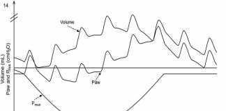 Thông khí dao động tần số cao không xâm lấn ở trẻ sơ sinh