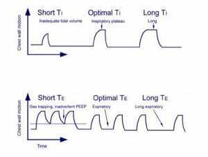 Hình 5. Ước tính thời gian hít vào và thở ra tối ưu trên cơ sở chuyển động của thành ngực. Hình ảnh được chuyển thể từ Ambalavanan N, Carlo WA.