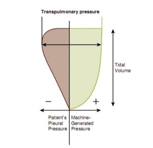 Hình 20-5 Trong lúc thức giấc, trẻ sơ sinh thở, thể tích khí lưu thông đi vào phổi được tạo ra bởi áp lực xuyên phổi, tổng áp lực âm trong lồng ngực được tạo ra bởi nỗ lực hô hấp tự phát của trẻ sơ sinh và áp lực dương do máy thở tạo ra. Do nỗ lực hô hấp của trẻ non tháng rất khác nhau và không nhất quán, nên sự đóng góp của trẻ sơ sinh vào áp lực xuyên phổi là khác nhau, do đó dẫn đến thể tích khí lưu thông thay đổi.