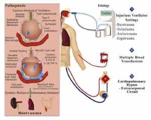 Hình 1: Cơ chế tổn thương phổi trong bối cảnh phẫu thuật tim với CPB
