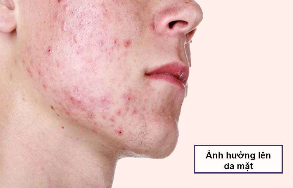 Thức khuya ảnh hưởng lên da mặt