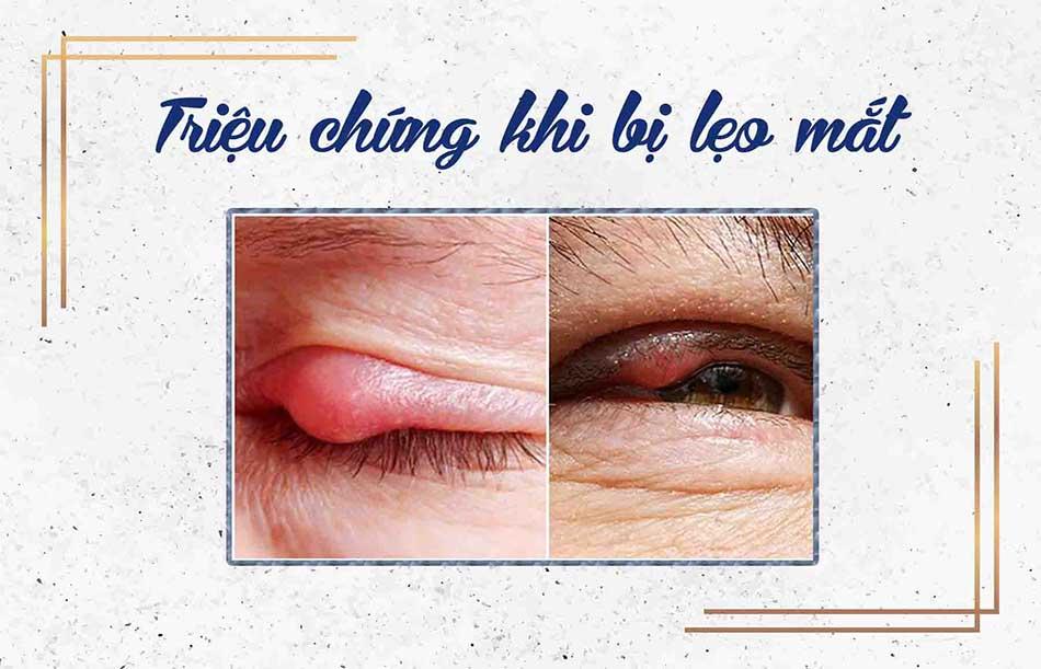 Triệu chứng của lẹo mắt