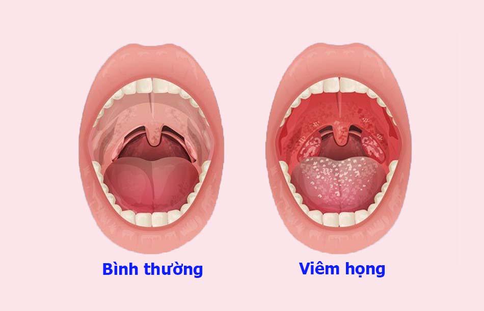 Viêm họng kéo dài có thể dẫn đến viêm họng hạt có mủ