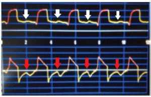 """Hình 1: Mũi tên màu trắng cho thấy """"ineffective efforts"""" trên biểu đồ pressure-time. Mũi tên màu đỏ """"ineffective efforts"""" trên biểu đồ flow-time."""