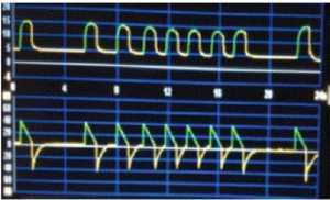 Hình 2: Auto-triggering gây ra do thất thoát từ bộ dây máy thở. Ghi nhận không có sự giảm áp lực đường thở trên biểu đồ pressure-time (biểu đồ trên) lúc bắt đầu pha hít vào, có nghĩa là không có trigger của bệnh nhân.