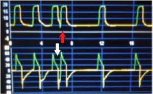 """Hình 3: Mũi tên màu đỏ cho thấy """"double-triggering"""" trên biểu đồ pressure-time. Mũi tên màu trắng chỉ """"double-triggering"""" trên biểu đồ flow-time."""