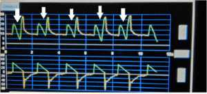 """Hình 5: Mũi tên trắng cho thấy """"flow asynchrony"""" trên biểu đồ pressure-time"""
