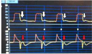 """Hình 6: Ví dụ về """"premature cycling"""". Mũi tên màu trắng cho thấy gắng sức hít vào tiếp tục sau khi kết thúc giai đoạn hít vào trên biểu đồ pressure - time. Mũi tên màu đỏ cho thấy sự thay đổi đột ngột lưu lượng thở ra gây ra do gắng sức hít vào của bệnh nhân."""