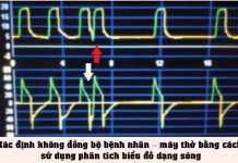Xác định không đồng bộ bệnh nhân – máy thở bằng cách sử dụng phân tích biểu đồ dạng sóng