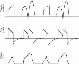 Hình 1: Không đồng bộ bệnh nhân - máy thở với kích hoạt hơi thở kép trong chế độ điều khiển Volume-Assist.