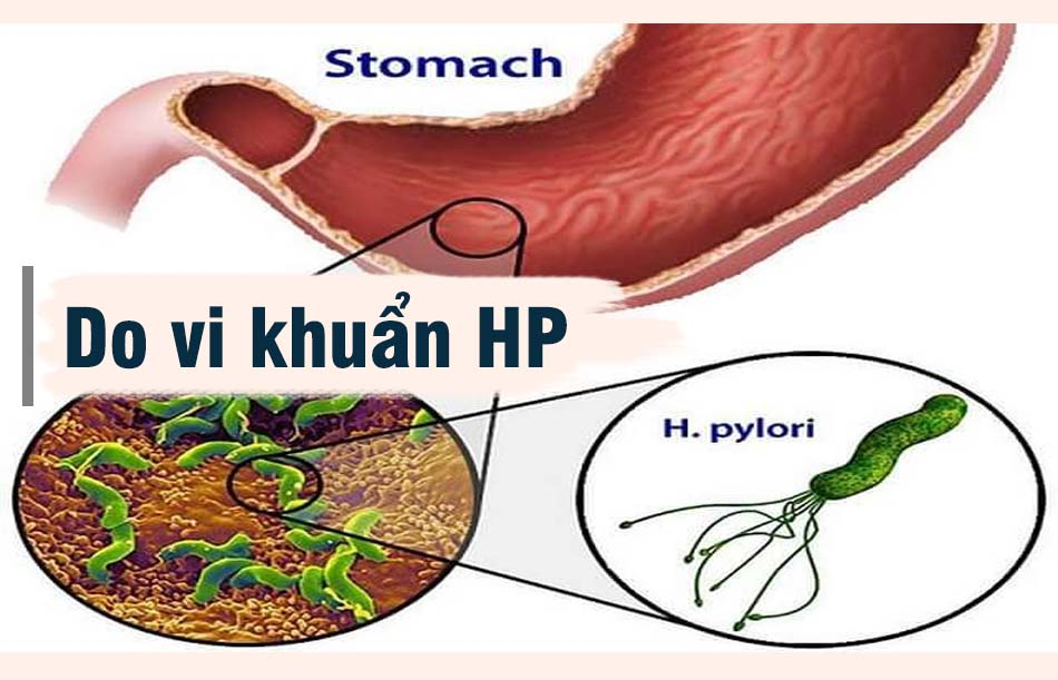 Do vi khuẩn HP gây nên