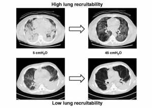 High lung recruitability - Low lung recruitability