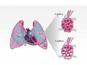 Phù phổi cấp thần kinh (Neurogenic pulmonary edema, NPE) là một hội chứng lâm sàng đặc trưng bởi sự xuất hiện cấp tính của phù phổi sau một tổn thương hệ thống thần kinh trung ương (CNS) đáng kể.