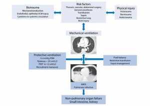 Hình 1 Sinh lý bệnh về tổn thương phổi do thở máy gây ra (VILI) trong phổi không bị tổn thương và cách tiếp cận thông khí thở bảo vệ phổi. VT: thể tích khí lưu thông; PBW: trọng lượng cơ thể dự đoán; PEEP: áp lực dương cuối kỳ thở ra; ARDS: Hội chứng nguy kịch hô hấp cấp tính; ECM: Ma trận ngoại bào.
