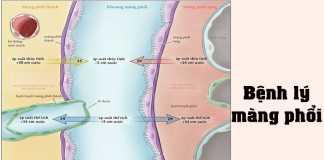 Bệnh lý màng phổi