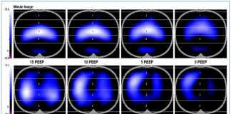Cá nhân hoá thông khí cơ học theo các thông số sinh lý để ổn định phế nang và giảm thiểu tổn thương phổi do thở máy gây ra (VILI)