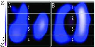 Chụp cắt lớp trở kháng điện (Electrical Impedance Tomography) trong thông khí cơ học