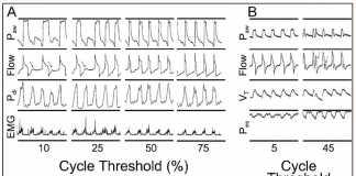 Kích hoạt máy thở trong tương tác bệnh nhân – máy thở