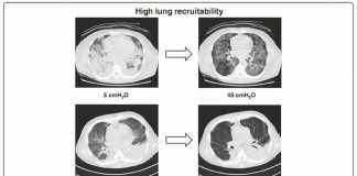 Thiếu oxy máu nặng: chọn chiến lược nào ?