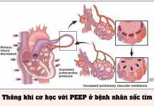 Thông khí cơ học với PEEP ở bệnh nhân sốc tim