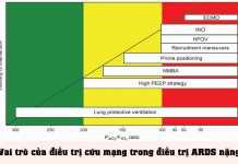 Vai trò của điều trị cứu mạng trong điều trị ARDS nặng