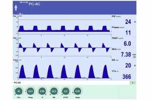 Hình 1. Dạng sóng bình thường trong PC-CMV. Dạng sóng trên biểu thị áp lực (Paw) - thời gian, dạng sóng giữa lưu lượng - thời gian và dạng sóng dưới là thể tích - thời gian.