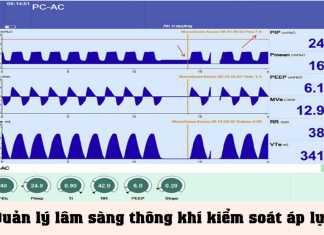 """Quản lý lâm sàng thông khí kiểm soát áp lực: Một phương pháp thuật toán quản lý thông khí bệnh nhân để giải quyết """"các biến bị quên lãng nhưng quan trọng"""""""