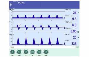 Hình 3. Thời gian hít vào ngắn. Hình 3 chứng minh rằng nếu thời gian hít vào quá ngắn, không cho phép áp lực phế nang đạt được mức áp lực đường thở được cài đặt, thời gian hít vào kết thúc trước khi lưu lượng khí hít vào trở về đường nền (như được chỉ ra bằng mũi tên màu đỏ) và thể tích khí lưu thông giảm.