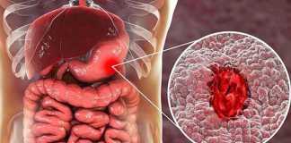 Xuất huyết dạ dày nên ăn gì?