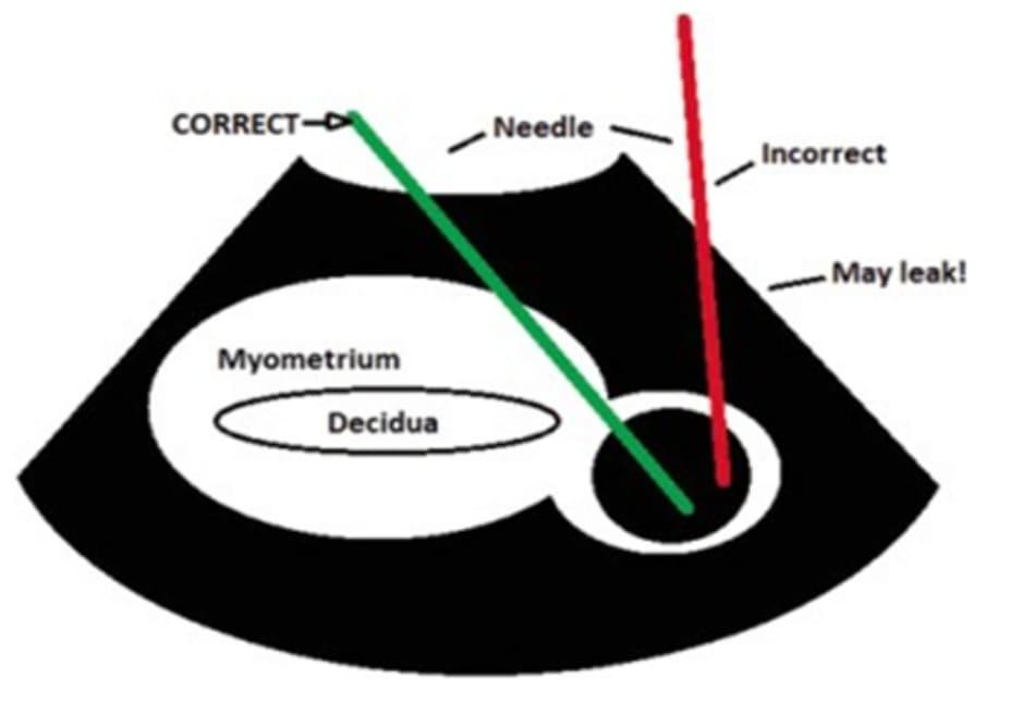 Hình 11.4 Kỹ thuật tiêm MTX vào trong khối thai điều trị thai kẽ. Needle: Kim, Correct/Incorrect: Hướng kim đúng/sai. Myometrium: cơ tử cung, decidua: màng rụng.