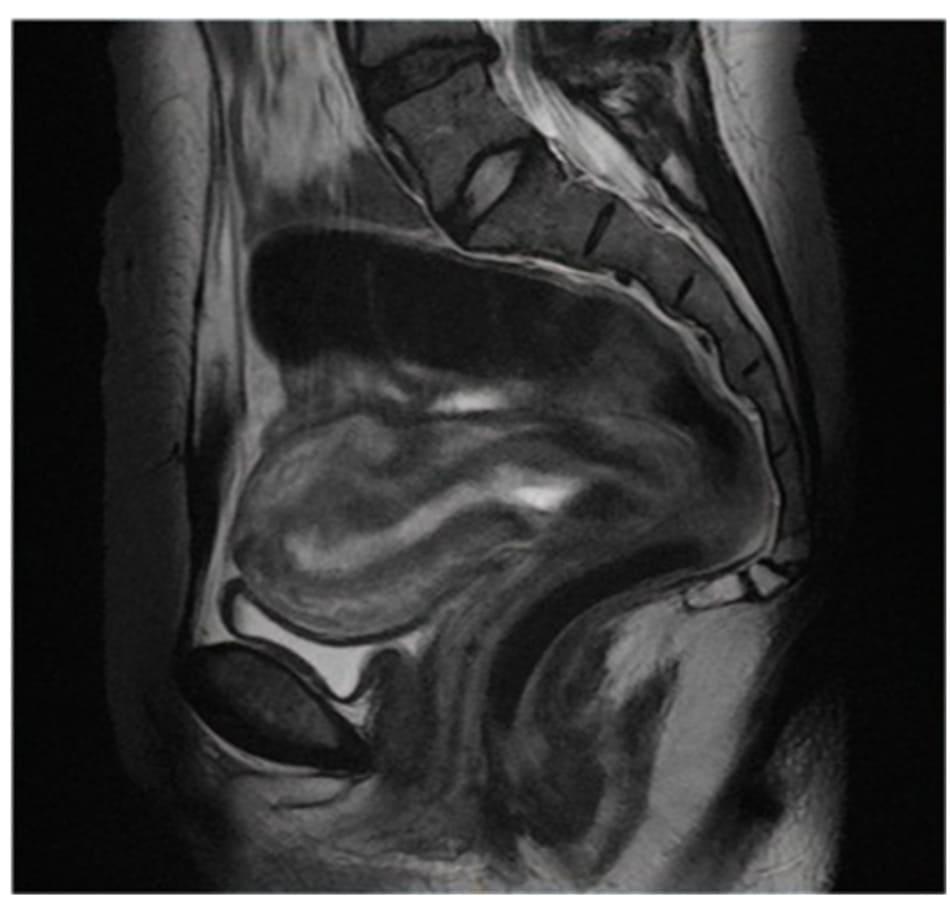 Hình 12.2 Hình ảnh chụp CHT mặt phăng sagittal thấy 1 khối thai ở vị trí cổ tử cung (tăng tín hiệu).