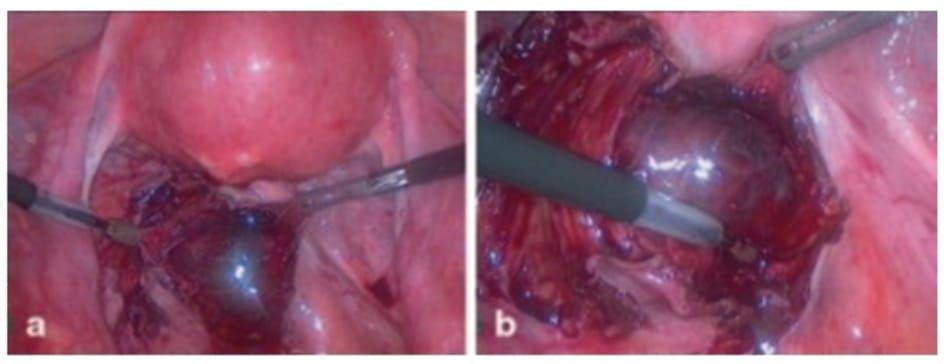 Hình 18.2 a và b khối bất thường chứa túi thai và máu ở sau khoang phúc mạc.