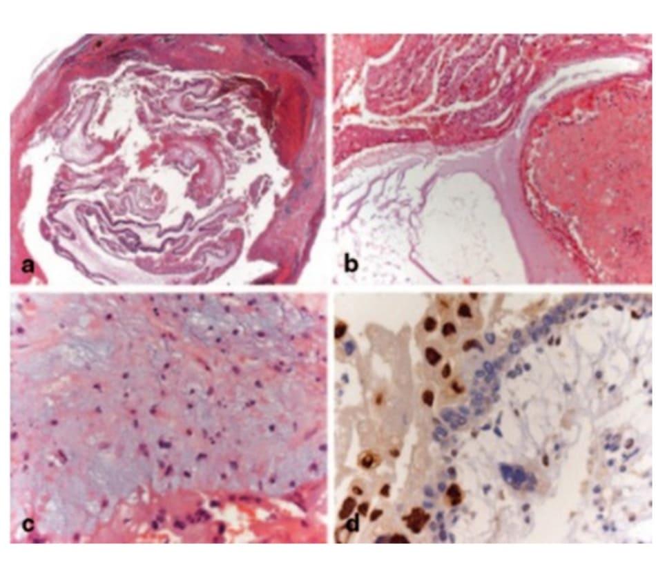 Hình 19.1 Xuất huyết quanh vòi tử cung với các nhung mao màng đệm phát triển lớn bất thường, biểu hiện tình trạng tăng sinh nguyên bào nuôi (a), và tăng sinh nguyên bào nuôi (b). Tình trạng vỡ nhân các tế bào nhân thực, kh- iến chúng hòa lẫn vào nguyên sinh chất (c). Nhuộm hóa mô miễn dịch, nhân p57kip2 không bắt màu trong các tế bào nguyên bào nuôi và tế bào sinh dưỡng, nhưng lại thấy rõ ở các nguyên bào nuôi ngoài nhung mao (d).