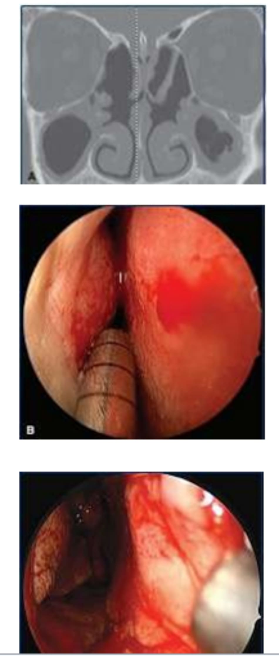 Figure 3–2. a. inferior turbi- nate hypertrophy with chronic rhinosi- nusitis, specifically the maxillary sinus (shown here), can be a source of postnasal drainage leading to cough. b. endoscopic preoperative photo of the right nasal pas- sage- way showing inferior turbi- nate hypertrophy. C. endoscopic postop- erative view of inferior turbinate submucosal reduction and lateral- ization to improve the right nasal airway, reduce nasal congestion, and decrease postnasal drainage.