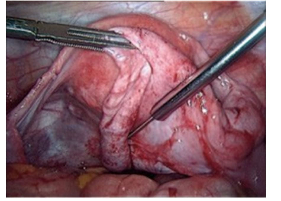 Hình 4.1 Chửa ngoài tử cung, trong vòi tử cung.