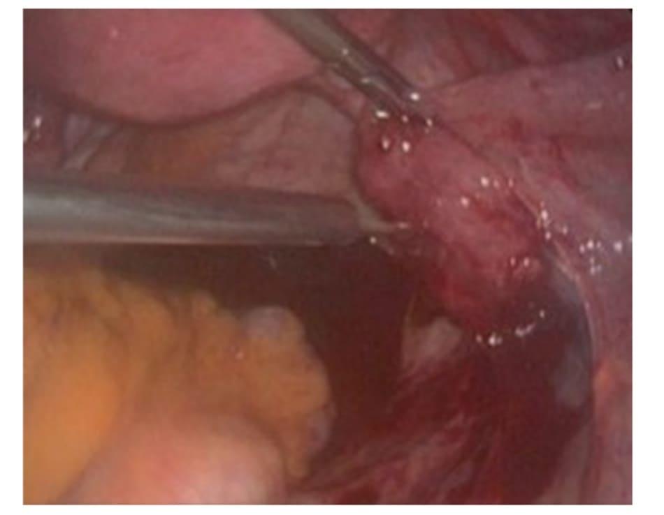Hình 6.2 Tiêm dung dịch vasopressin loãng vào khối thai ngoài tử cung.
