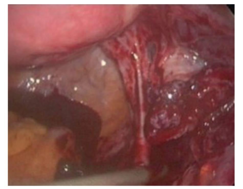 Hình 6.3 Gỡ dính khối thai ngoài tử cung có thể thấy buồng trứng và thành bên khung chậu chảy máu nhiều hơn.
