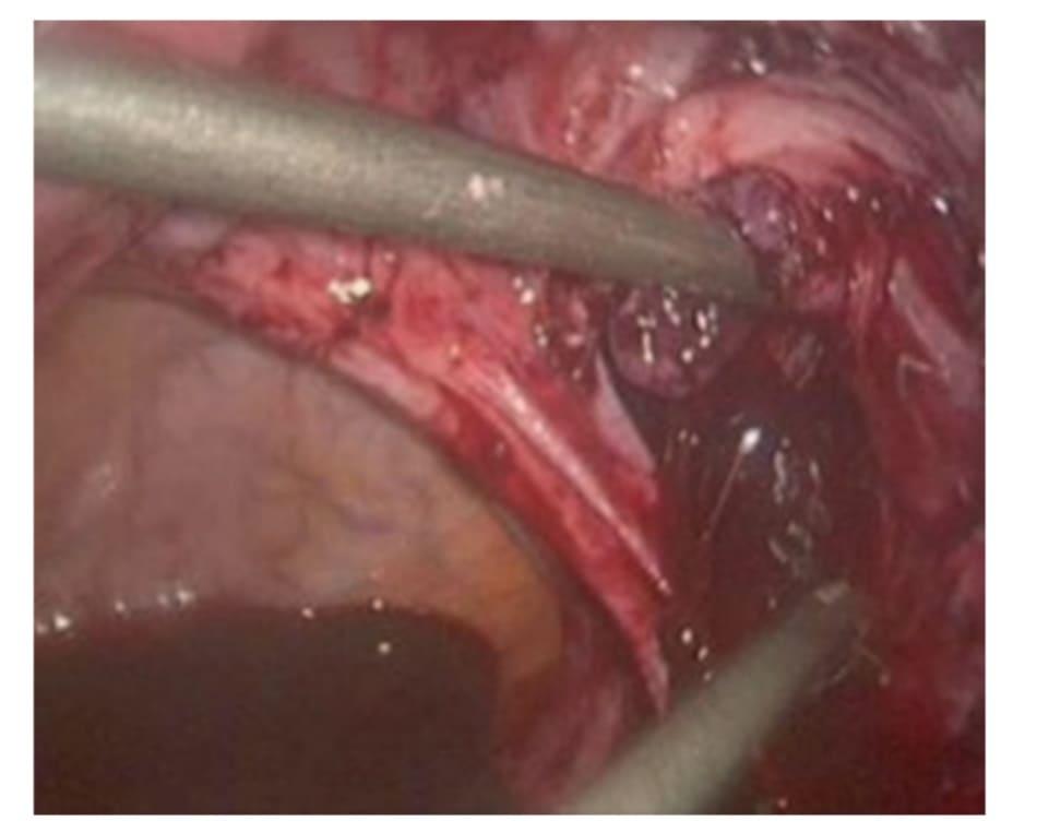 Hình 6.4 Máu tiếp tục chảy, quan sát thấy bất thường giải phẫu vòi tử cung nên quyết định cắt bỏ đề cầm máu thay vì cố gắng bảo tồn. (Đây là ví dụ 1 trường hợp khác, không phải là hình ảnh ca lâm sàng này nên kết quả phẫu thuật sẽ khác nhau).