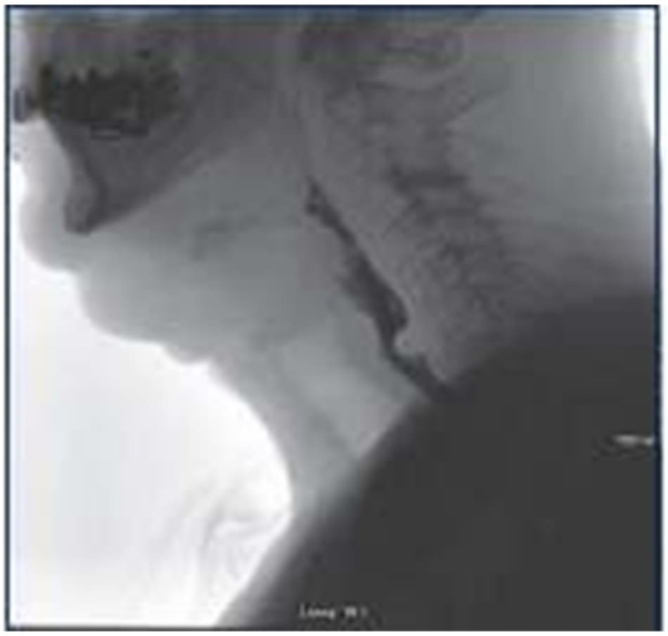 Figure 7–1. vfss view of a cricopharyngeal bar in an individual after radiation treatment for head and neck cancer.