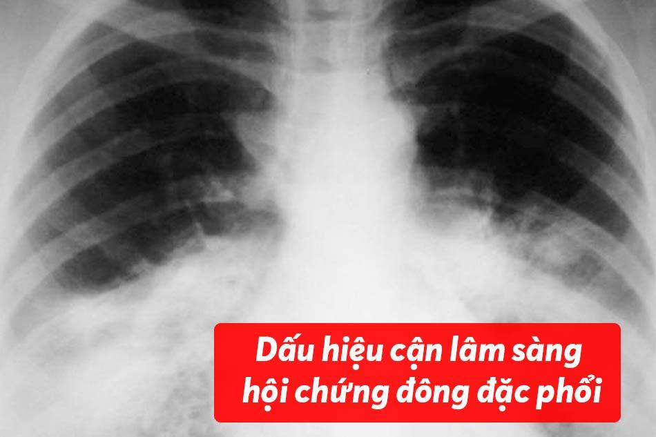 Dấu hiệu cận lâm sàng của hội chứng đông đặc phổi