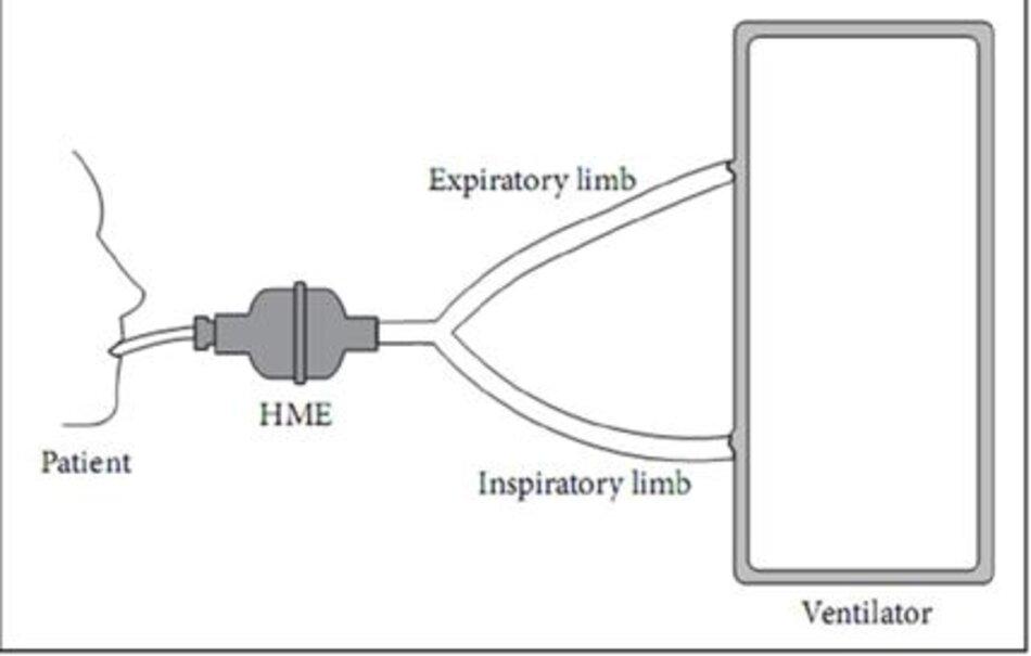 Hình 4: Vị trí HME trong mạch thông khí.