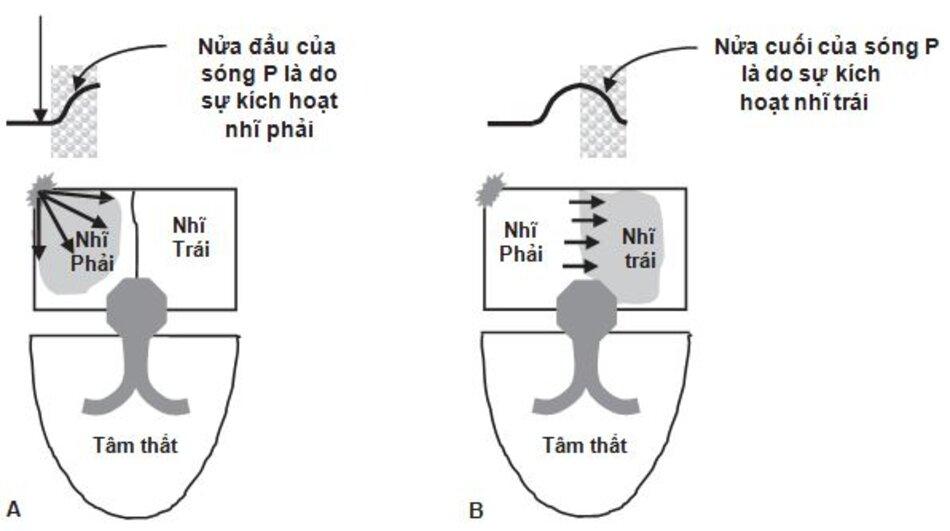 Hình 2.2: Hoạt hóa nhĩ - sóng P. Khi nút xoang phát xung, không có hoạt động điện nào được ghi lại trên ECG. Sóng đầu tiên là sóng P, nó đại diện cho sự kích hoạt tâm nhĩ. Nửa đầu của sóng P đại diện cho sự kích hoạt nhĩ phải và nửa cuối của sóng P đại diện cho sự kích hoạt nhĩ trái.