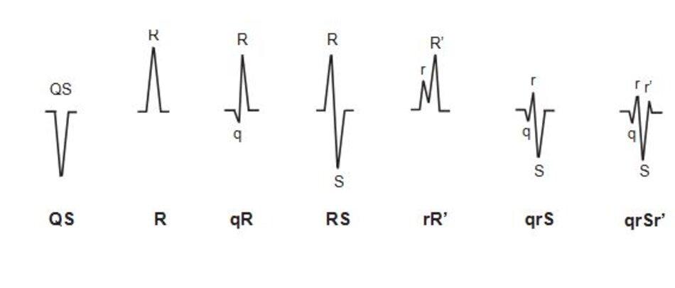 Hình 2.5: Danh pháp QRS. Sơ đồ biểu diễn cách xác định các sóng trong phức bộ QRS.